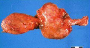 بیماری های تولید مثلی - Prostate disease